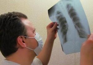 Лечение туберкулеза фиброзного типа