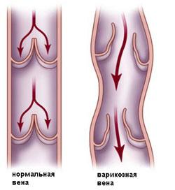 Симптомы варикозного расширения вен нижних конечностей