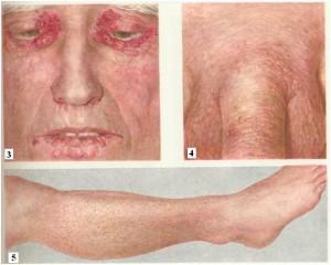 Симптомы и признаки заболевания амилоидозом
