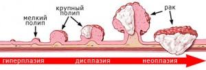 Лечение толстого кишечника