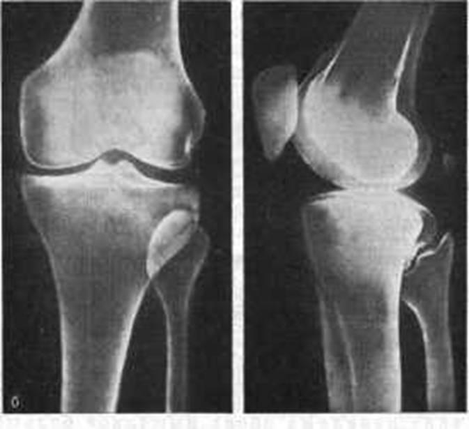 Закрытый перелом наружного мыщелка правой большеберцовой кости