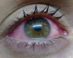 Окомистин капли для здоровых глаз