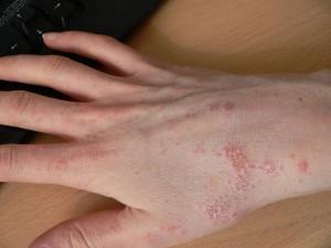 Чесотка представляет собой заразное паразитарное заболевание кожи, вызываемое уникальным паразитом чесоточным клещом