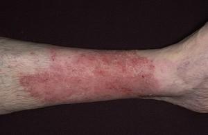 Экзема представляет собой одно из наиболее популярных поражений кожи, встречающееся в различных возрастах и по самым разнообразным причинам