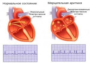 Мерцательная аритмия представляет собой одну из разновидностей нарушения сердечного ритма и связана исключительно с работой предсердий