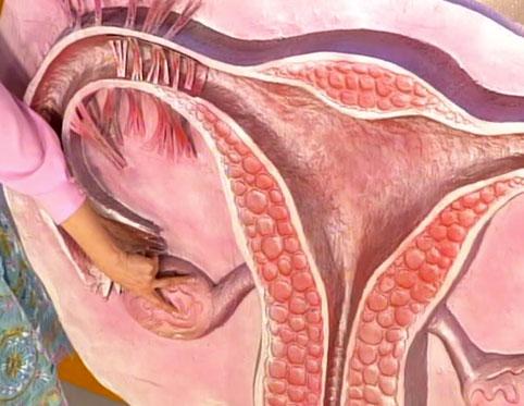 6дпп прострелы в яичниках по ночам матка тянет таком случае