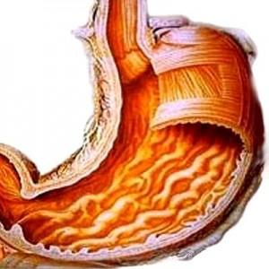 Препарат Холензим применяется при лечении гастрита