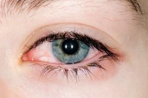 Конъюнктивит — болезнь безвозрастная, которая может настигнуть как малышей, так и взрослых.
