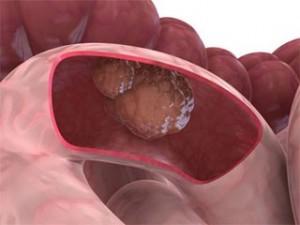 Среди всех опухолей, возникающих в желудочно-кишечном тракте, опухоли тонкой кишки встречаются у 1-3,5 процента больных