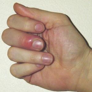 Если на пальце имеется ранка, то в нее может попасть золотистый стафилококк. В результате этого вокруг ранки появляется интенсивное покраснение, а в самой ранке через непродолжительное время скапливается большое количество гноя