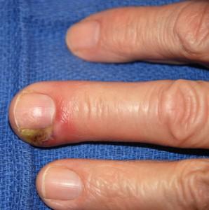 В медицине состояние, при котором возникает гнойное воспаление, которое чаще всего распространяется вокруг ногтя, называют панариций