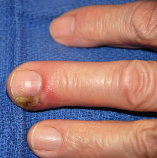 Нарыв на пальце возле ногтя как лечить с