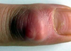 Если не предоставить вовремя квалифицированной медицинской помощи, то могут возникнуть серьезные проблемы с пальцем.