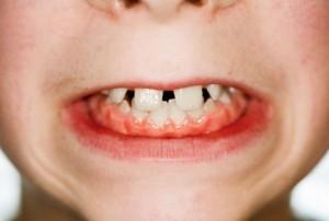 Причиной бруксзима может быть то, что ребенок очень эмоционален и не успевает расслабиться