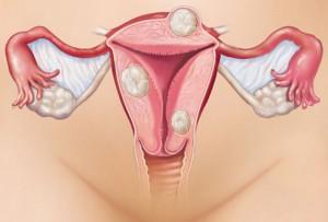 Причиной патологии данного заболевания является наличие у больной миомы матки