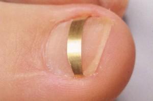 Если проблема с ногтем находится только в самом начале, можно воспользоваться специальными пластинами, предназначенными поднимать уголок ногтя