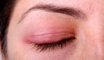 Блефарит:  что это за болезнь и как лечить