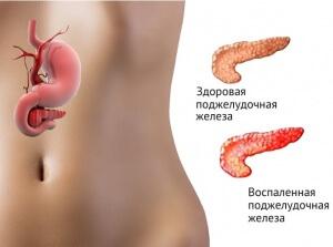Причиной панкреатита может стать падение на живот