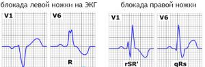 На кардиограмме блокады правой и левой ножки