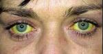 Желтые склеры глаз: причины, лечение
