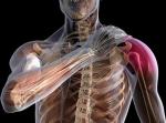 Бурсит плечевого сустава: как лечить народными средствами