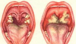 Бактериальная инфекция в горле