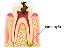 Образование на корне зуба