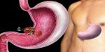 Лечение хеликобактерной инфекции: причины, симптомы и профилактика