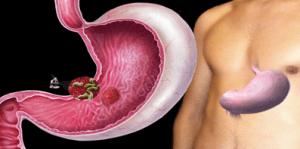 Хеликобактер пилори - частая причина диареи