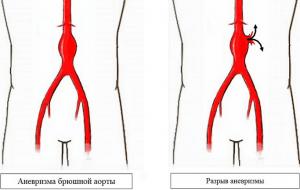 Разрыв аневризмы аорты брюшной