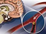 Гипертонус головного мозга. Как своевременно выявить и победить болезнь