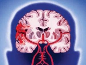 Церебросклероз сосудов головного мозга