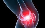 Какой врач лечит артроз коленного сустава, методы и профилактика