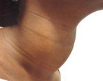 Диффузный токсический зоб и беременность: есть ли опасность для ребенка
