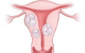 Различные виды миомы матки