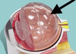 Гидрофильный гель или стекловидное тело глаза