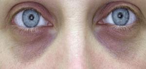Процедура блефаропластика способ удалить мешки под глазами