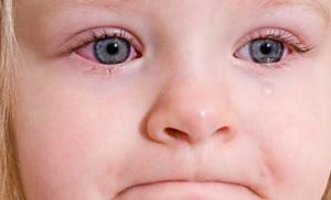 Аллергический коньюктивит у ребенка