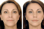 Как избавиться от носогубных морщин и увеличить упругость кожи