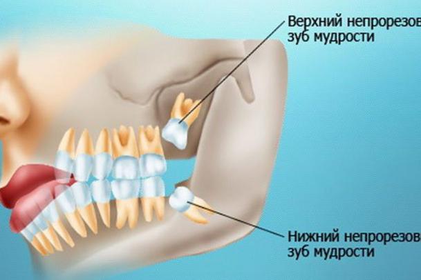 Непрорезавшиеся зубы мудрости