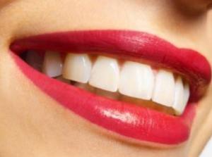 Хорошо сделанные зубы