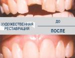 Наращивание передних зубов: особенности, показания и запреты для проведения операции