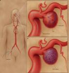 Расширение сосудов головного мозга: симптомы тревожного состояния