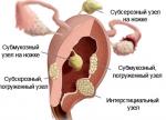 Где расположен интрамурально субсерозный узел, лечение патологии