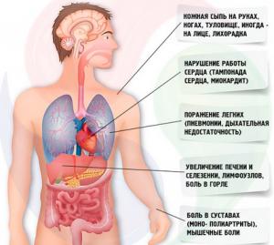 Симптомы синдрома Стилла