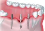 В каких случаях используют базальные имплантаты, достоинства метода