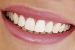 Импланты в красивой улыбке
