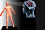 Болезнь атаксия: что это, классификация, причины, симптомы и лечение атаксии