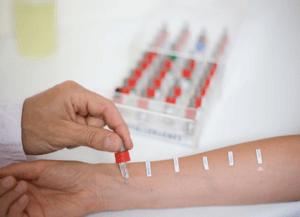 Тест на аллерген