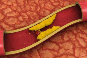 Чистка сосудов от холестериновых бляшек